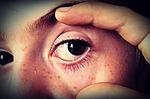 Gesicht mit geroetetem Auge